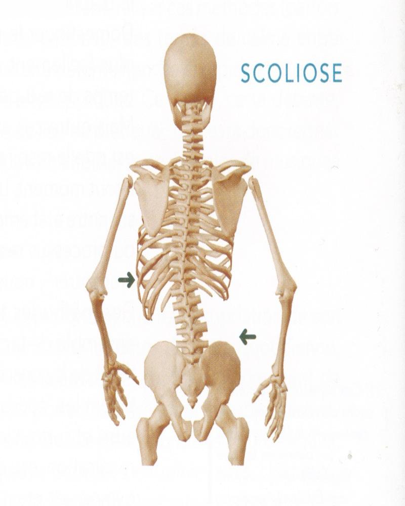 Le diagnostic de la scoliose